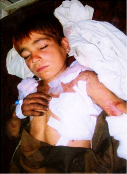 Naeem Ullah was just 10 years old when he died of shrapnel wounds from a drone strike on October 18th 2010 in Datta Khel, North Waziristan.
